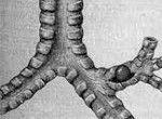 adenom bronhiilor