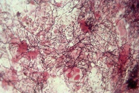 actinomicoză