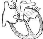 Venelor pulmonare anormali