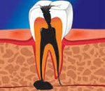 Apikální periodontitis