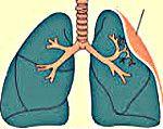 atelectazie pulmonară