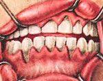 Atrofická zánět dásní