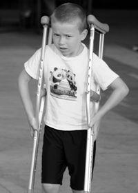 Tratamentul bolii Perthes la copii
