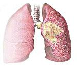 Cancer pulmonar central