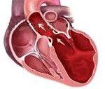 cardiomiopatie dilatativă