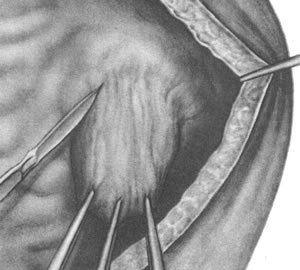 Diverticul al vezicii urinare