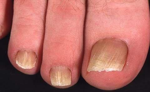 Nail gljiva (onihomikoza simptoma)