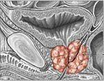 Prostatita cronica
