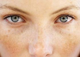 razbarvanje kože