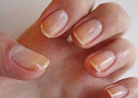 Žuta nokte