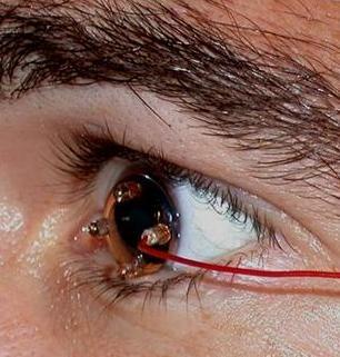 retinographia