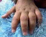 Artrita reumatoidă juvenilă