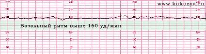Kardiotokografija (CTG) u trudnoći