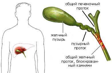 Léčba žlučník lekarstvami2