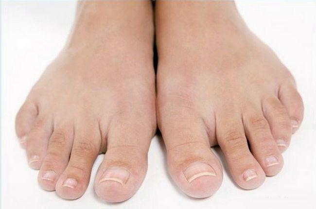 Cure za nokte gljiva