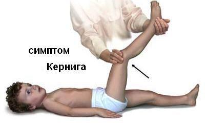 Kernig lui semn (incapacitatea de a îndrepta un îndoit la șold și genunchi articulațiilor piciorului