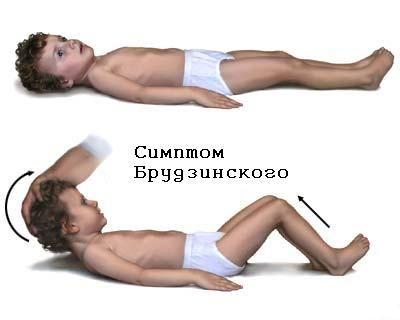 Brudzinskogo simptom (atunci când încearcă să înclina capul înainte în poziția predispuse picioarele îndoite de la genunchi, cu o presiune asupra picioarelor simfizei indoite articulatiilor genunchiului)