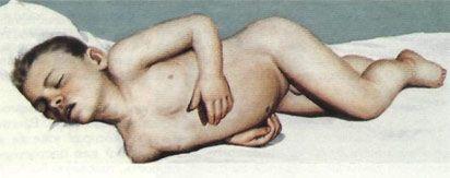 Postura caracteristică a pacientului cu meningita avansat.