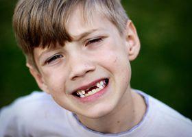 Mléčných zubů u dětí a jejich změny