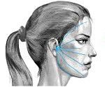 Nevrită de nerv facial