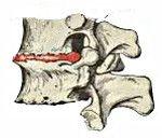 Osteocondrozei