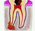 Akutní parodontitidy