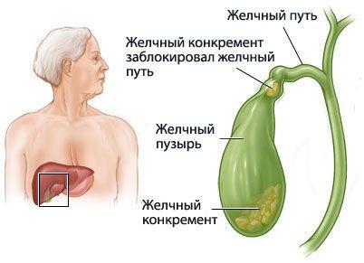Příznaky žlučových kamenů puzyre2
