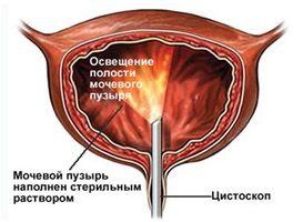 Reprezentarea schematică a studiului cystoscopic