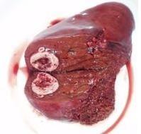 hepatoblastomul