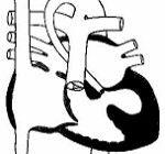 sindromul hipoplastic stang
