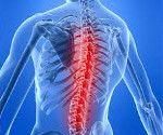 arahnoidită spinării
