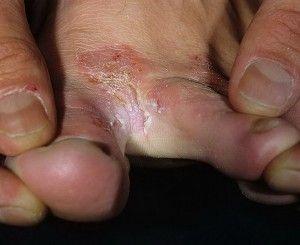 Pukotine između prstiju