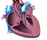 cardiomiopatie secundară