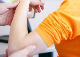 Manifestacije slabost mišića