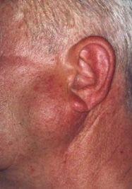 Tumorile maligne ale glandelor salivare
