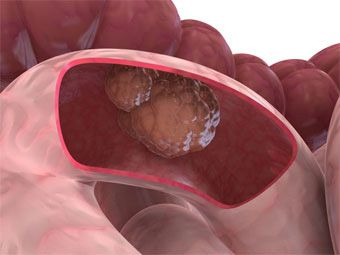 Stromale ale tumorii a intestinului subtire
