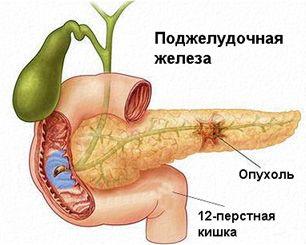 Tumorile maligne ale pancreasului